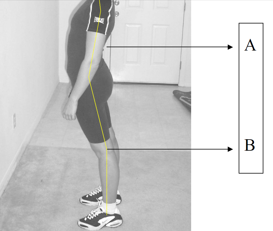 Anterior Pelvic Tilt and Lordosis